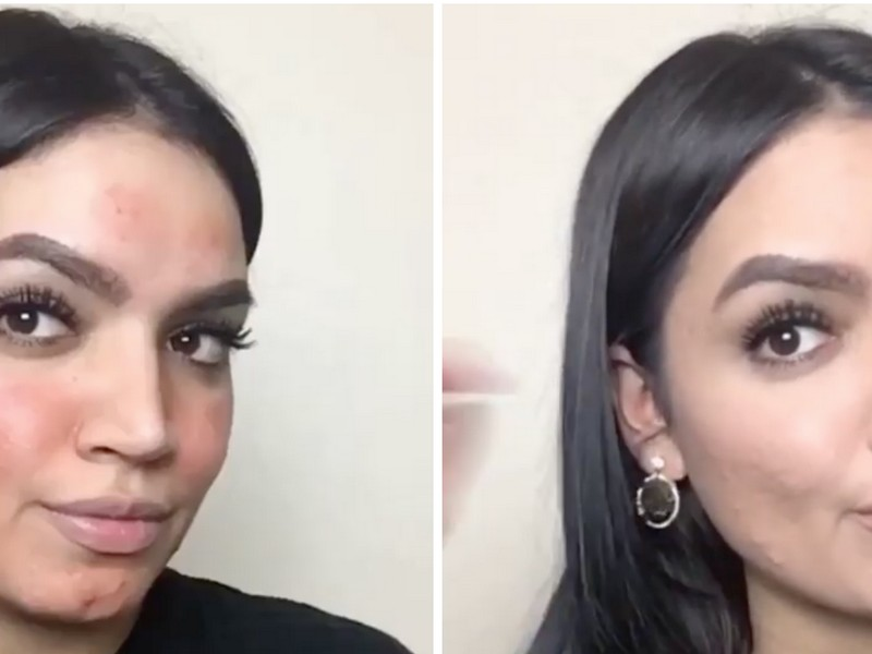 Kadeeja Khan - The Skincare Instagrammers For Who Are Struggling With Cystic Acne.