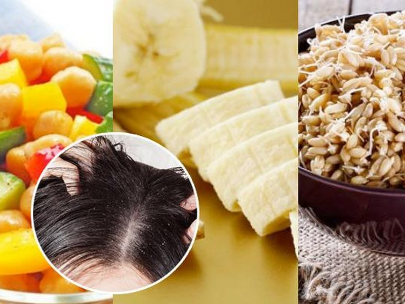 Tip No4 To Get Rid Of Dandruff: Eat Differently
