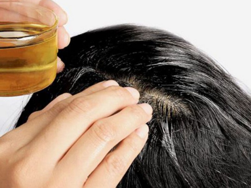Tip No6 To Get Rid Of Dandruff: Give Your Hair Extra Care